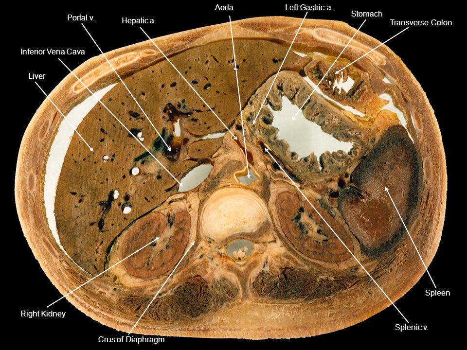 Liver Inferior Vena Cava. Hepatic a. Aorta. Left Gastric a. Stomach. Transverse Colon. Splenic v.