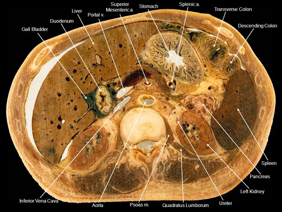 Duodenum Gall Bladder. Liver. Portal v. Stomach. Transverse Colon. Descending Colon. Splenic a.