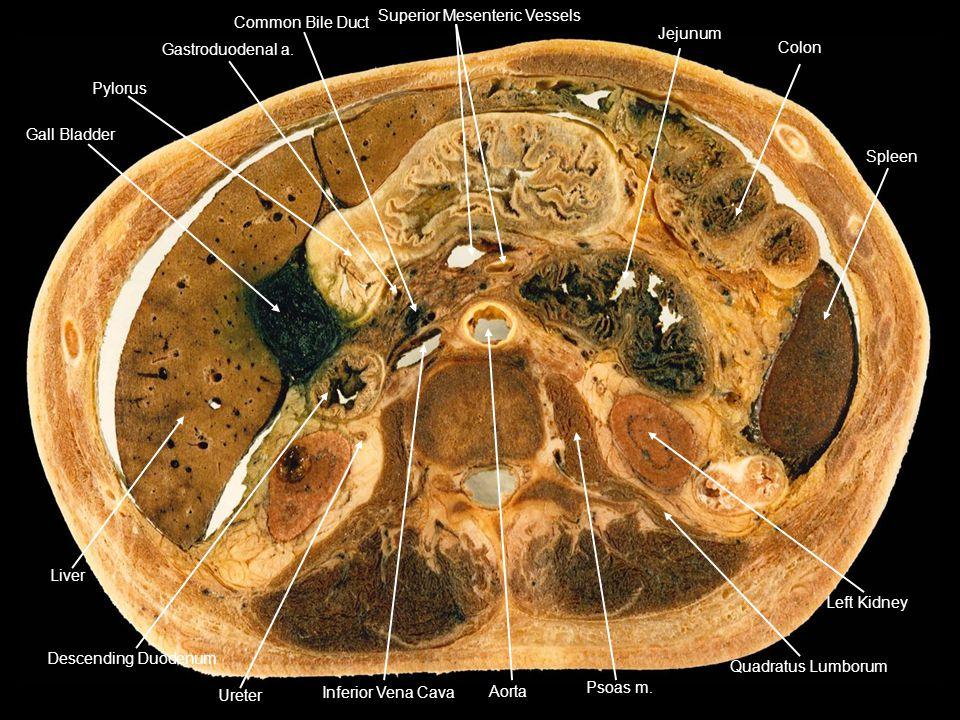 Gall Bladder Pylorus. Gastroduodenal a. Common Bile Duct. Superior Mesenteric Vessels. Jejunum.