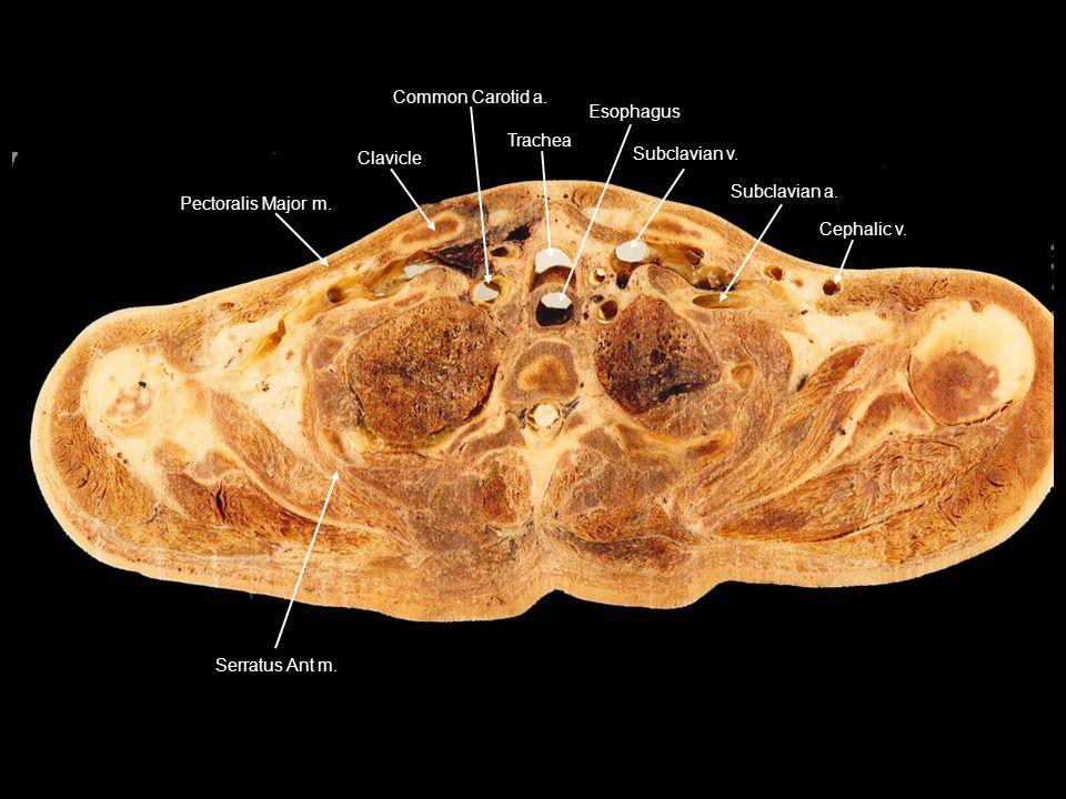 Pectoralis Major m. Clavicle. Common Carotid a. Trachea. Esophagus. Subclavian v. Subclavian a.