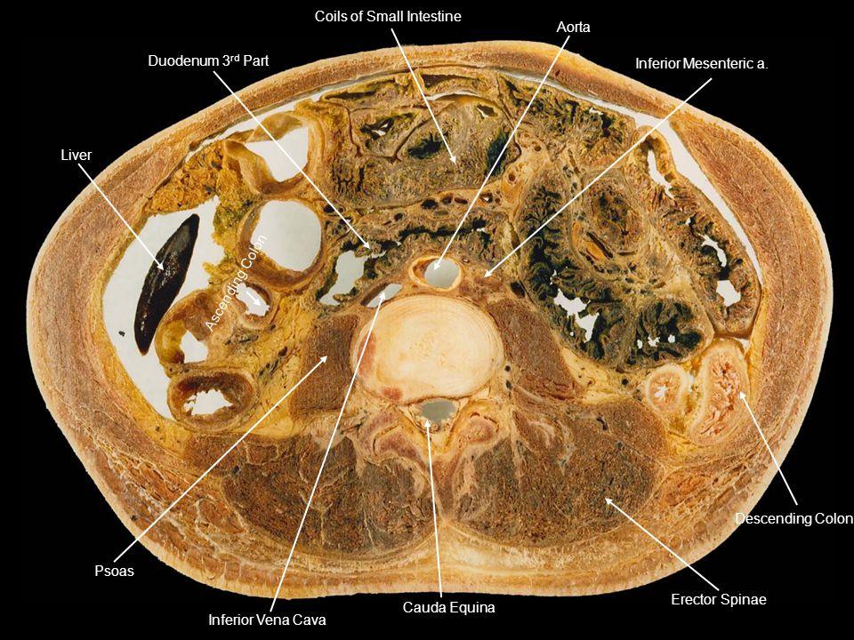 Liver Duodenum 3rd Part. Coils of Small Intestine. Inferior Mesenteric a. Descending Colon. Erector Spinae.
