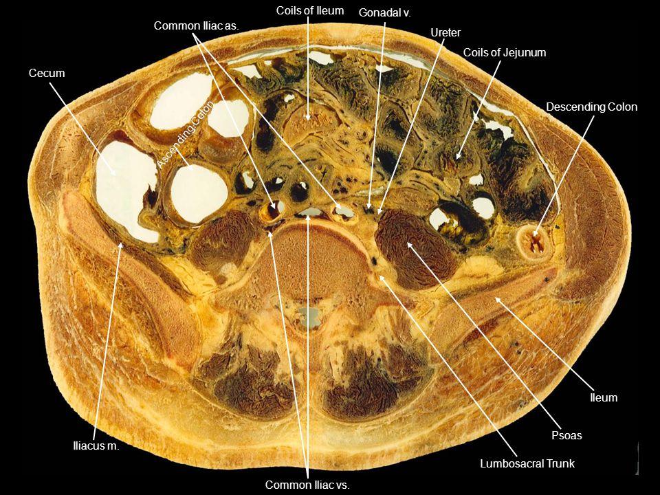 Cecum Coils of Ileum. Gonadal v. Common Iliac as. Ureter. Coils of Jejunum. Descending Colon. Ileum.
