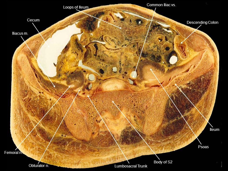 Cecum Iliacus m. Loops of Ileum. Descending Colon. Common Iliac vs. Ileum. Psoas. Body of S2.