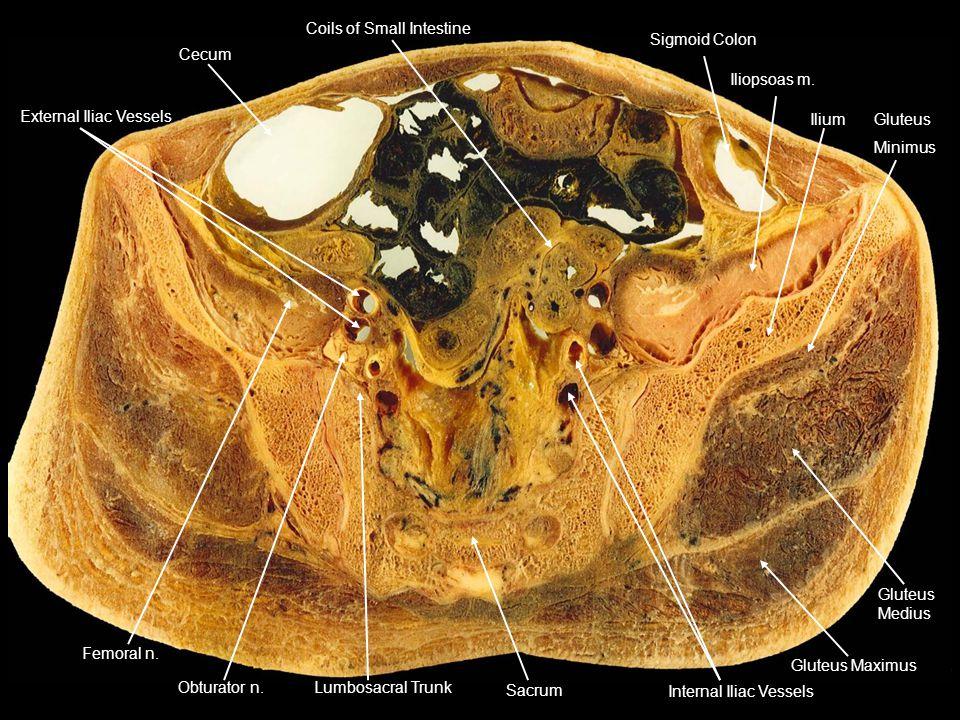 Cecum Coils of Small Intestine. Sigmoid Colon. Iliopsoas m. Ilium. Gluteus. Minimus. Medius. Gluteus Maximus.