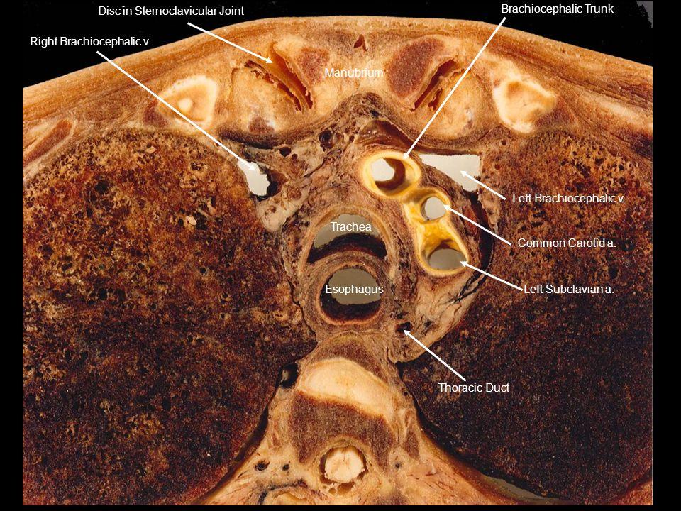 Thoracic Duct Left Subclavian a. Left Brachiocephalic v. Common Carotid a. Brachiocephalic Trunk.