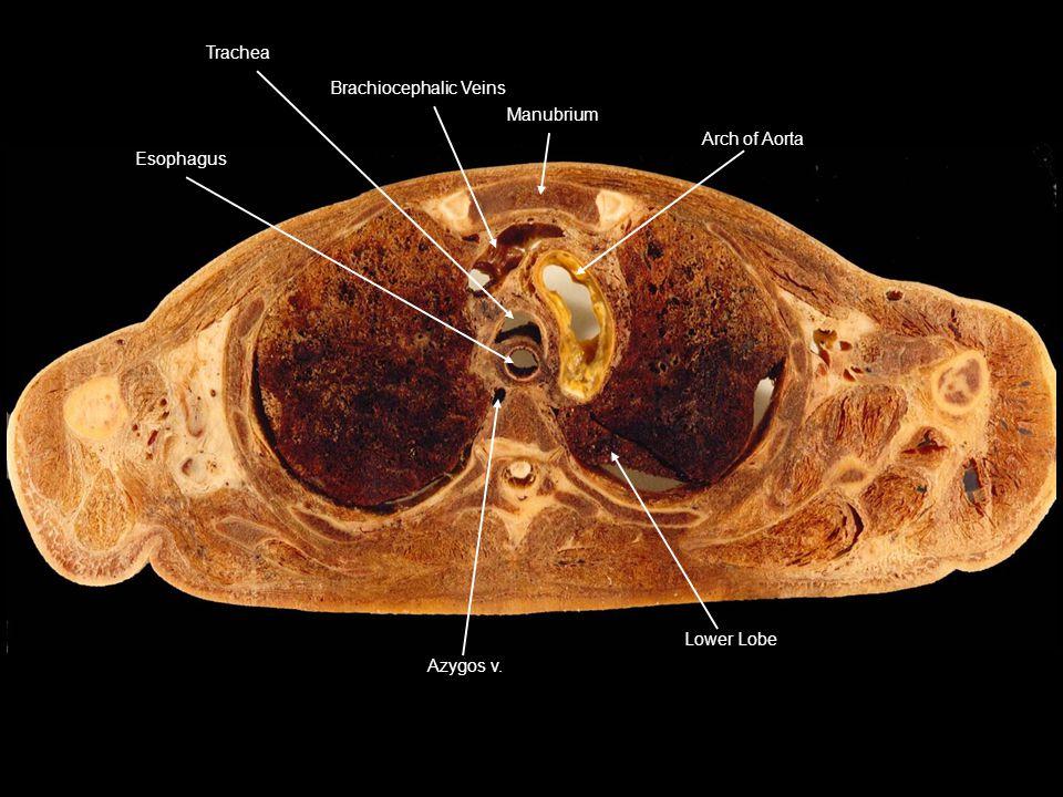 Lower Lobe Azygos v. Arch of Aorta Manubrium Brachiocephalic Veins Trachea Esophagus