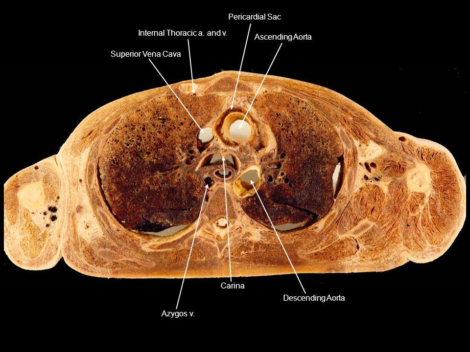 Superior Vena Cava Internal Thoracic a. and v. Pericardial Sac. Ascending Aorta. Descending Aorta.