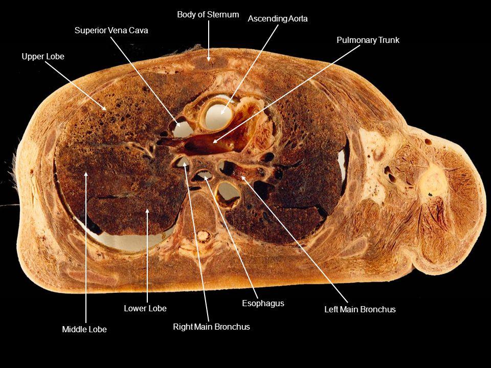 Upper Lobe Superior Vena Cava. Body of Sternum. Ascending Aorta. Pulmonary Trunk. Left Main Bronchus.