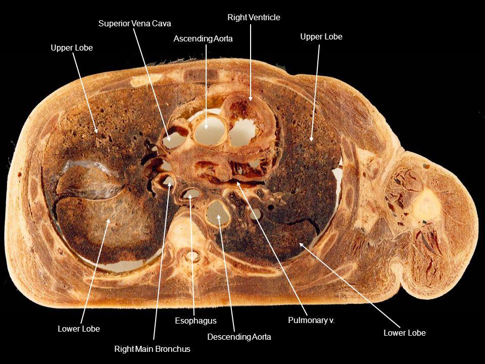 Ascending Aorta Superior Vena Cava. Upper Lobe. Right Ventricle. Lower Lobe. Pulmonary v. Descending Aorta.