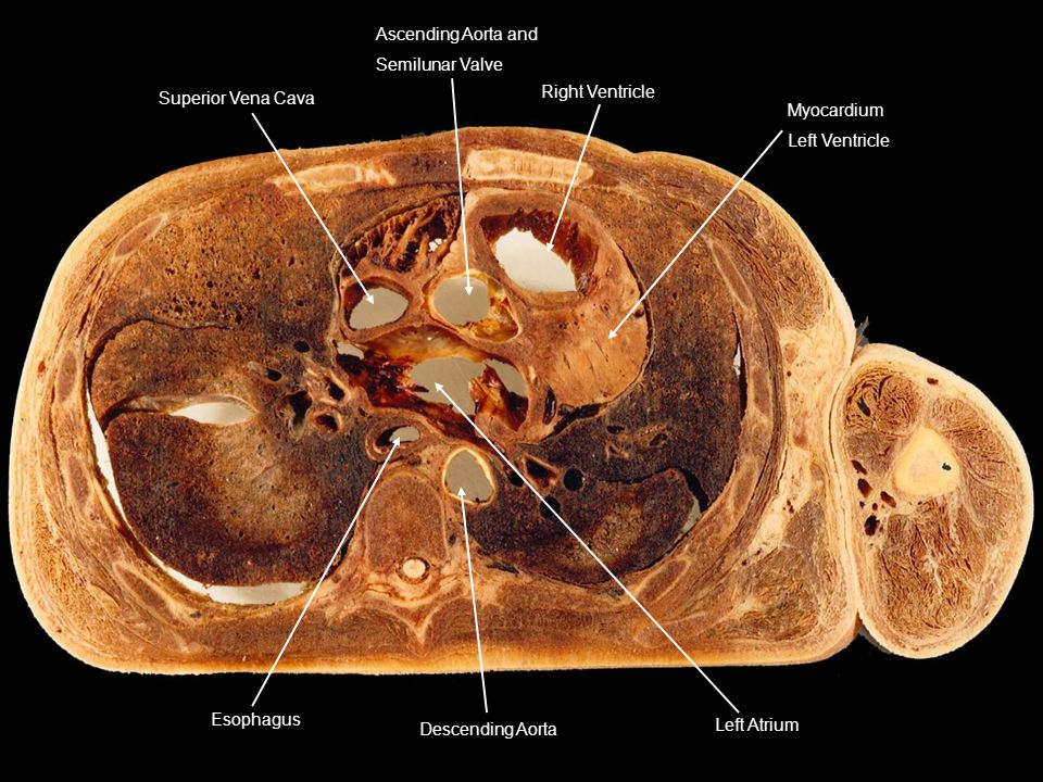 Superior Vena Cava Ascending Aorta and. Semilunar Valve. Right Ventricle. Myocardium. Left Ventricle.