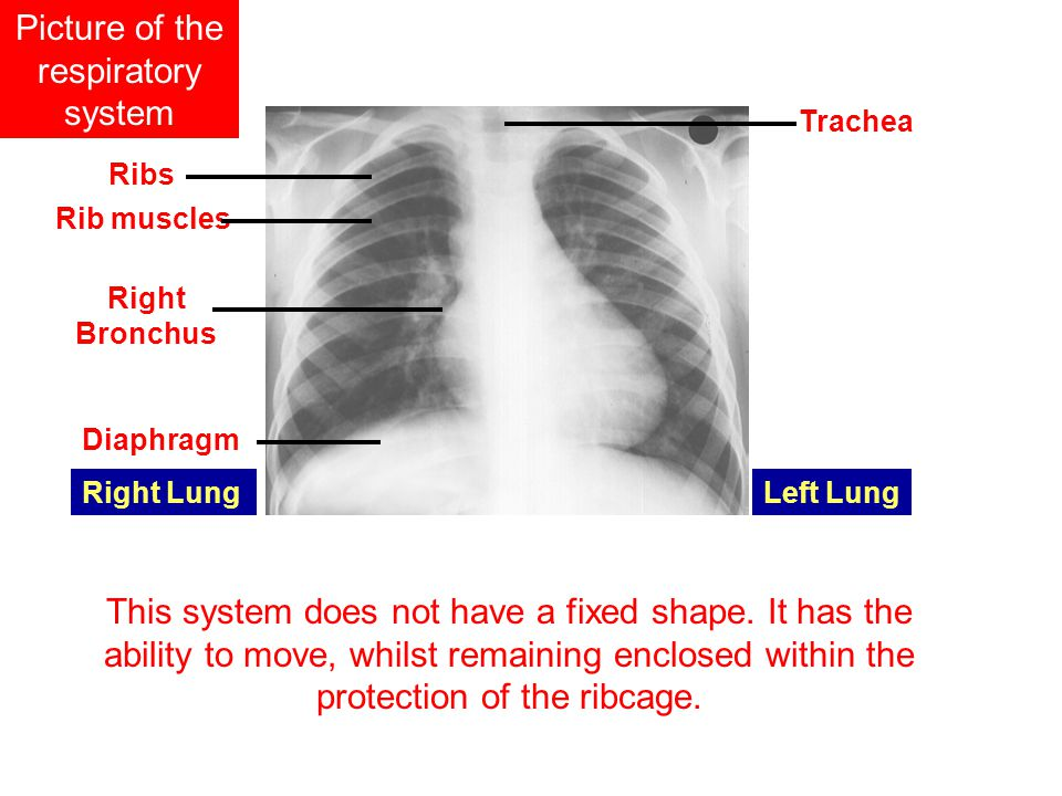 Picture of the respiratory system