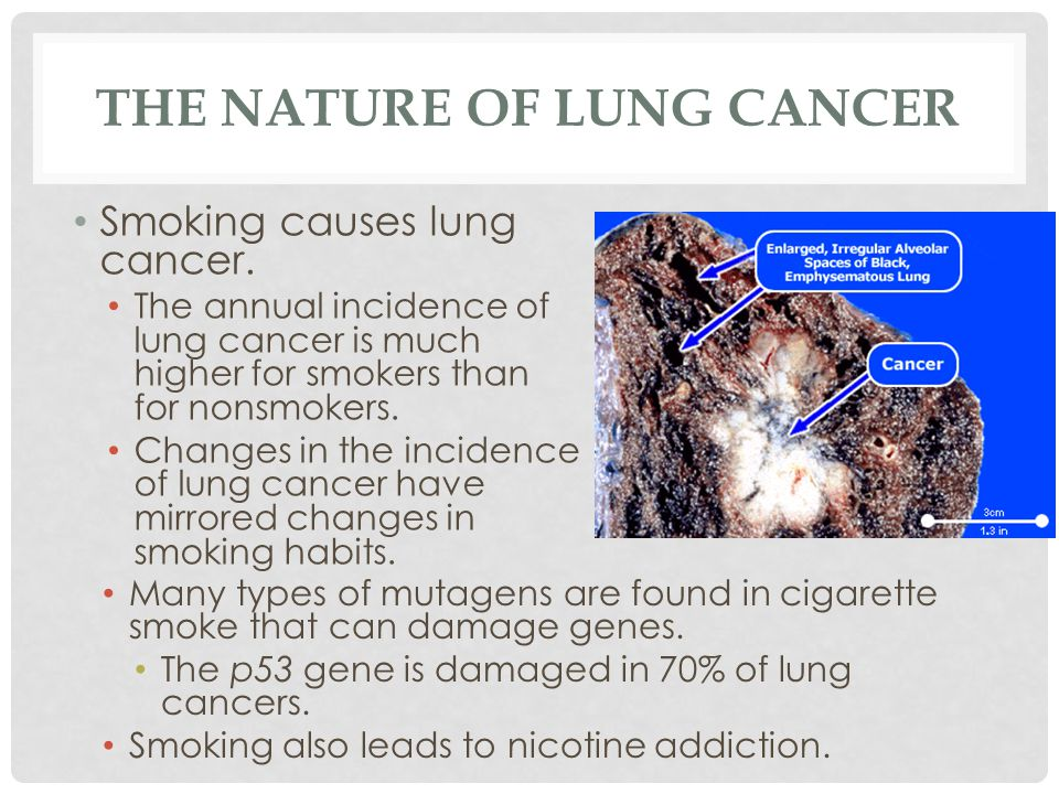 The Nature of Lung Cancer