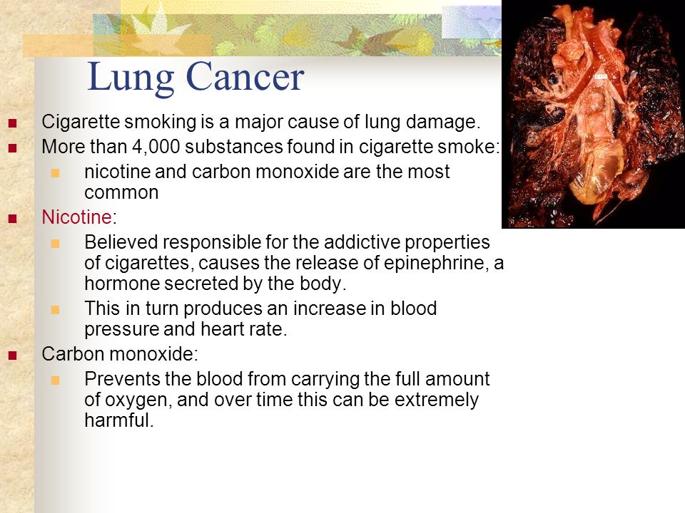 Lung Cancer Cigarette smoking is a major cause of lung damage.