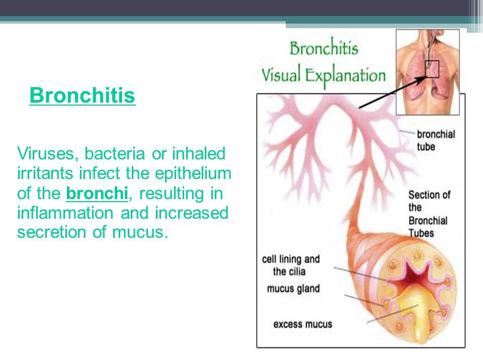 Wednesday, April 10, 2013 Bronchitis.