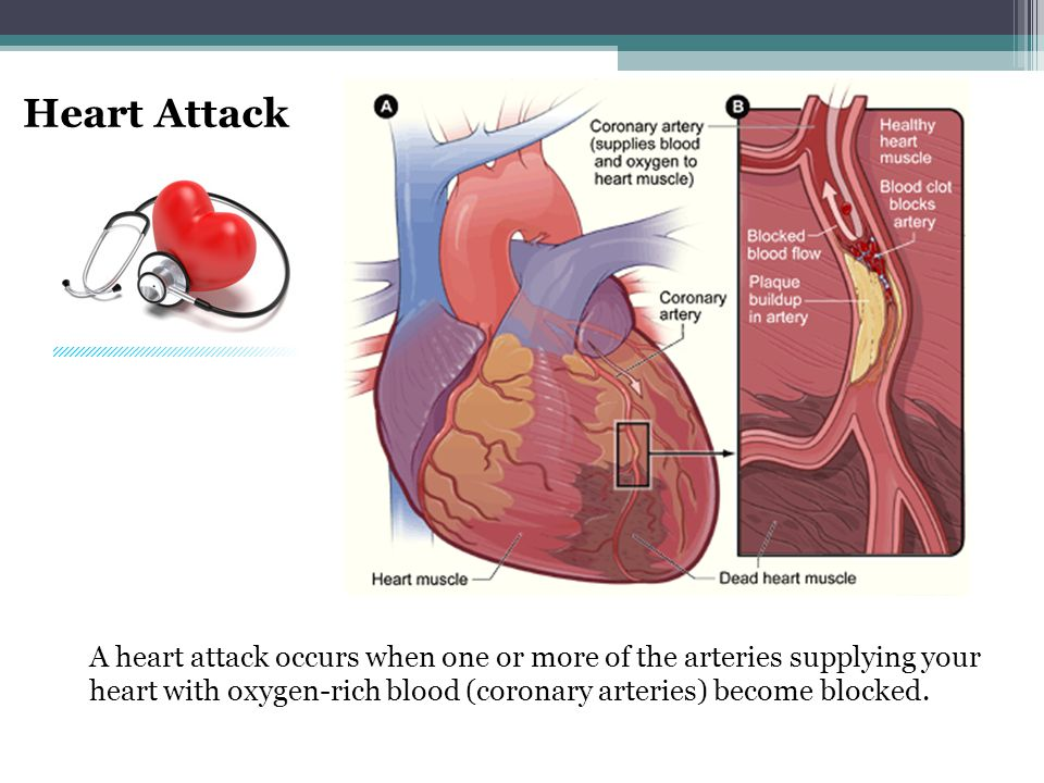 Heart Attack A heart attack occurs when one or more of the arteries supplying your heart with oxygen-rich blood (coronary arteries) become blocked.