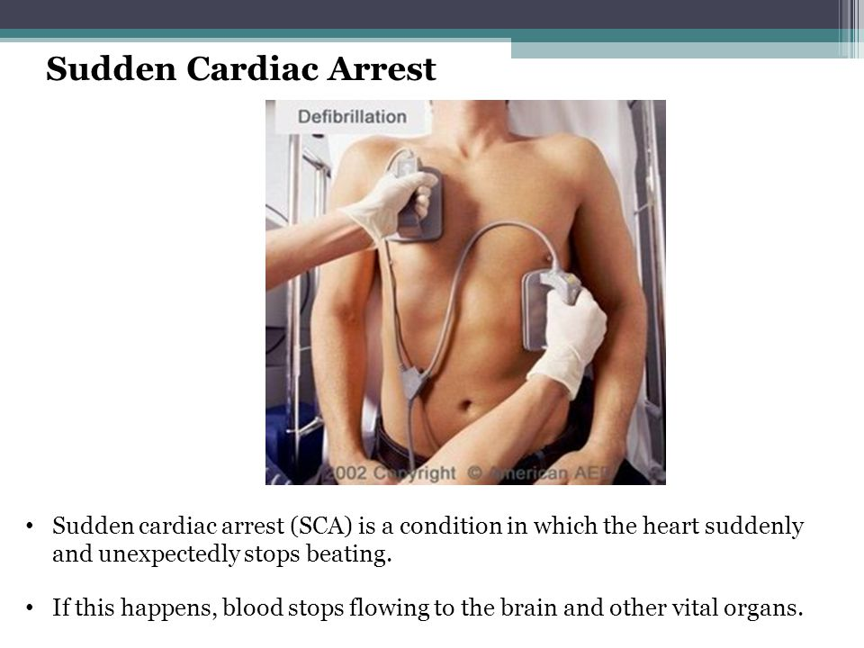Sudden Cardiac Arrest The only remedy for survival is an electric shock from an AED.