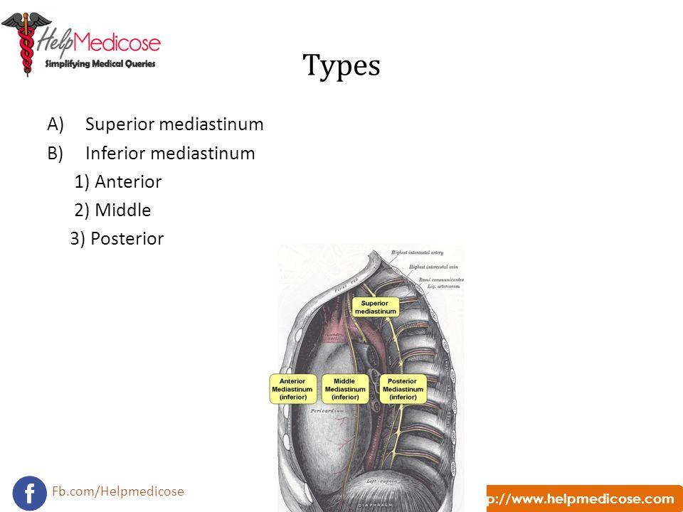 Types Superior mediastinum Inferior mediastinum 1) Anterior 2) Middle