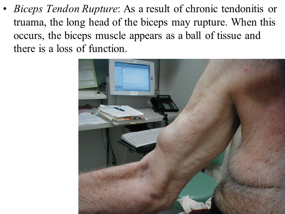 Biceps Tendon Rupture: As a result of chronic tendonitis or truama, the long head of the biceps may rupture.