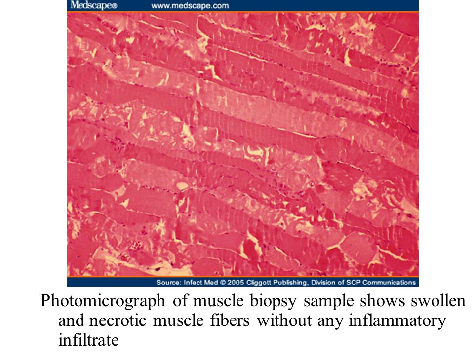 Photomicrograph of muscle biopsy sample shows swollen and necrotic muscle fibers without any inflammatory infiltrate