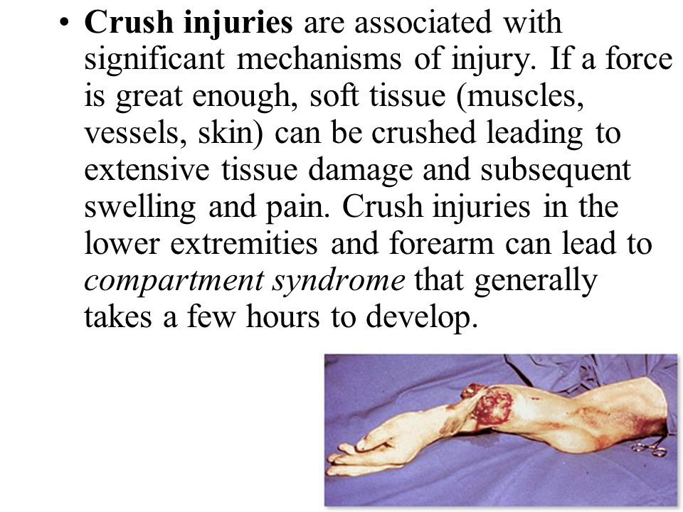 Crush injuries are associated with significant mechanisms of injury