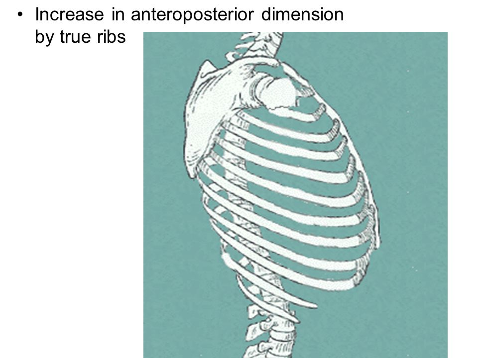 Increase in anteroposterior dimension by true ribs