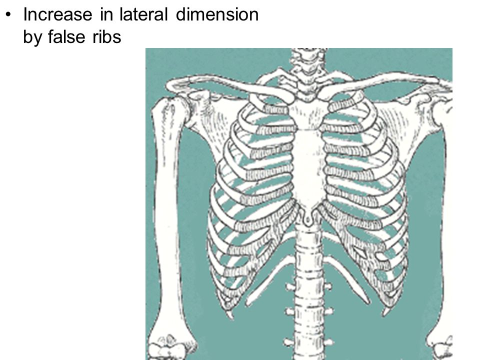 Increase in lateral dimension by false ribs