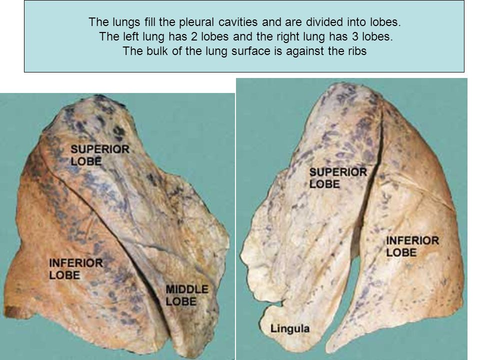 The lungs fill the pleural cavities and are divided into lobes.
