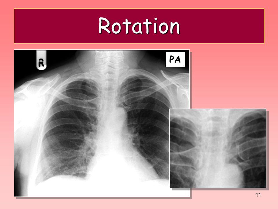 Rotation PA