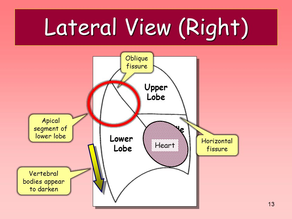 Lateral View (Right) Upper Lobe Middle Lobe Lower Lobe Heart Oblique