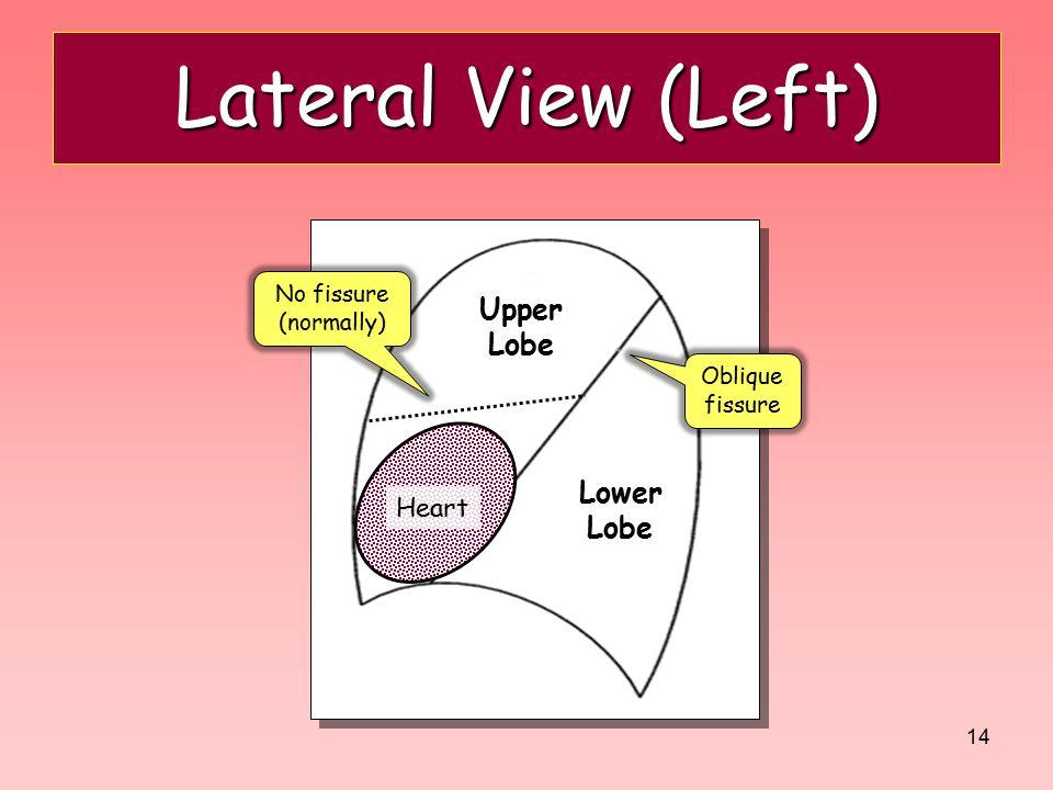 Lateral View (Left) Upper Lobe Lingula Lower Lobe Heart No fissure