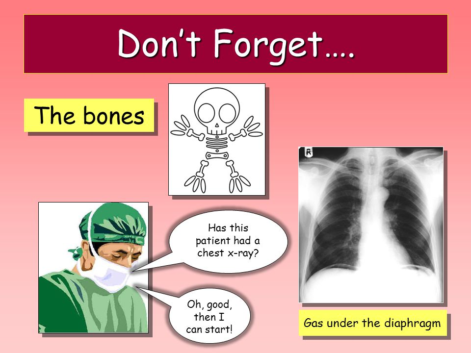 Don't Forget…. The bones Gas under the diaphragm