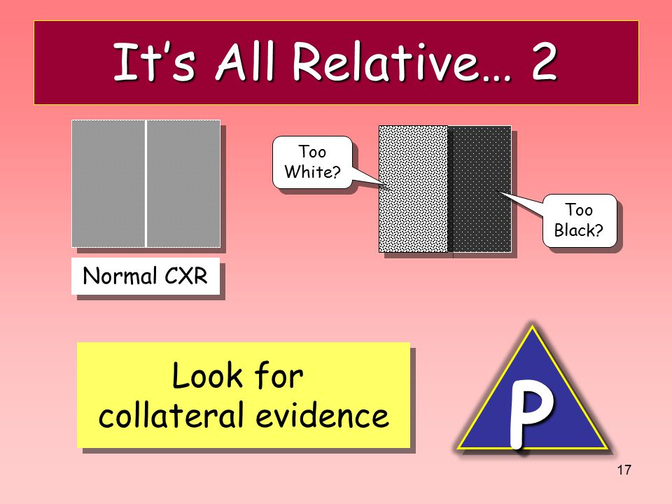 P It's All Relative… 2 Look for collateral evidence Normal CXR Too