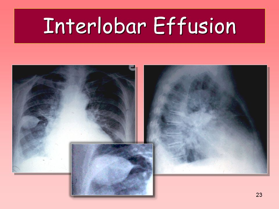 Interlobar Effusion