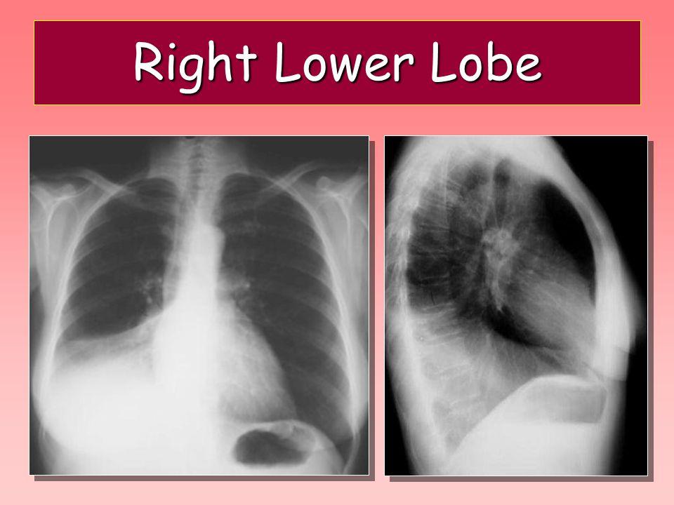 Right Lower Lobe