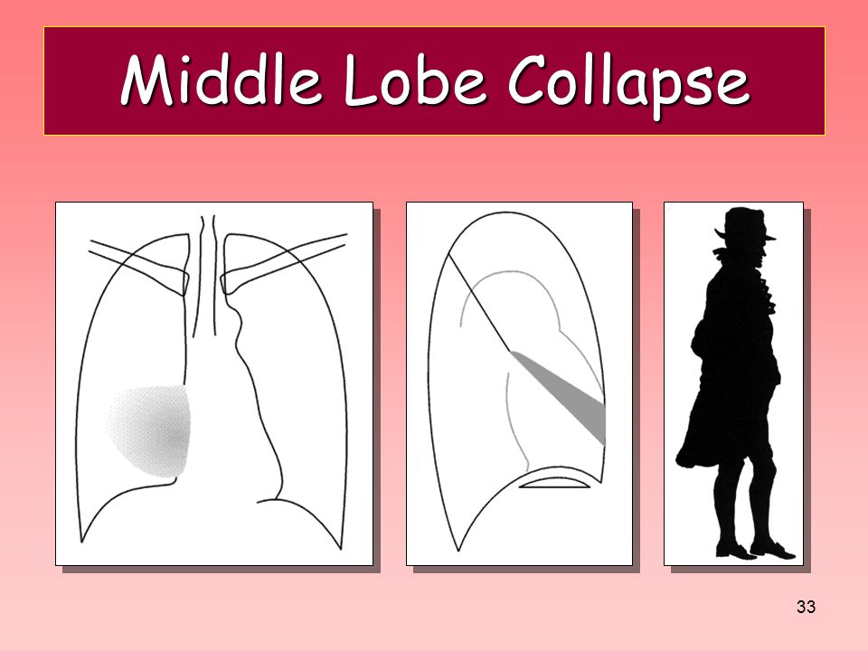Middle Lobe Collapse