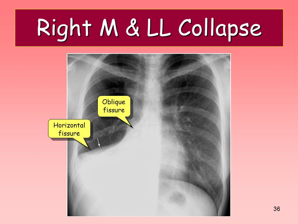Right M & LL Collapse Oblique fissure Horizontal fissure