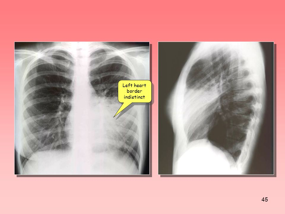 Left heart border indistinct