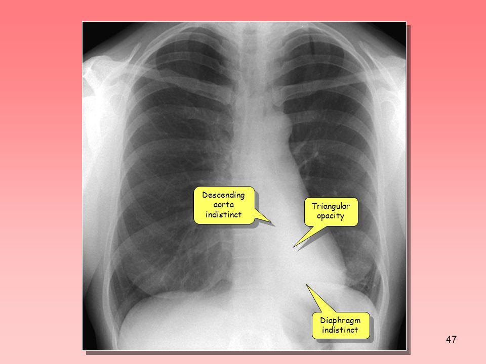 Descending aorta indistinct