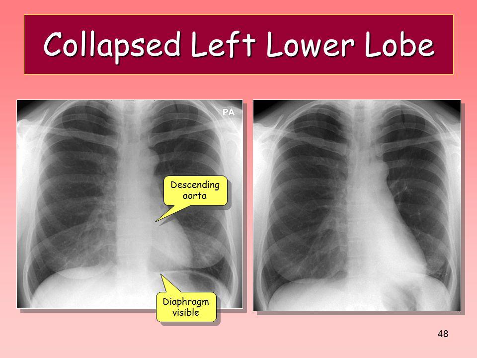 Collapsed Left Lower Lobe
