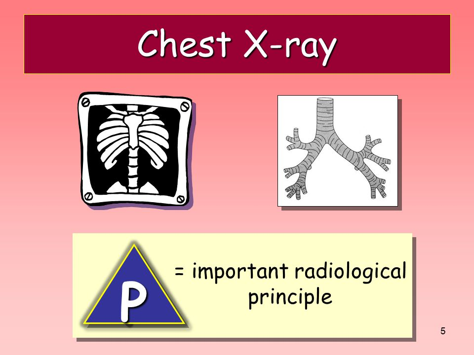 = important radiological