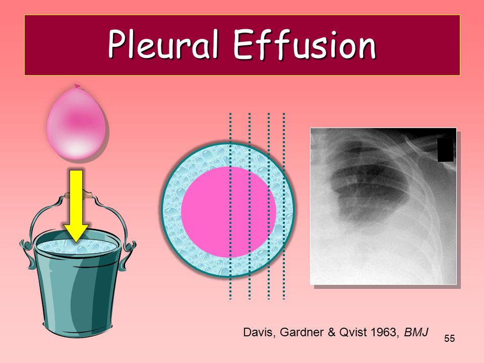 Pleural Effusion Davis, Gardner & Qvist 1963, BMJ