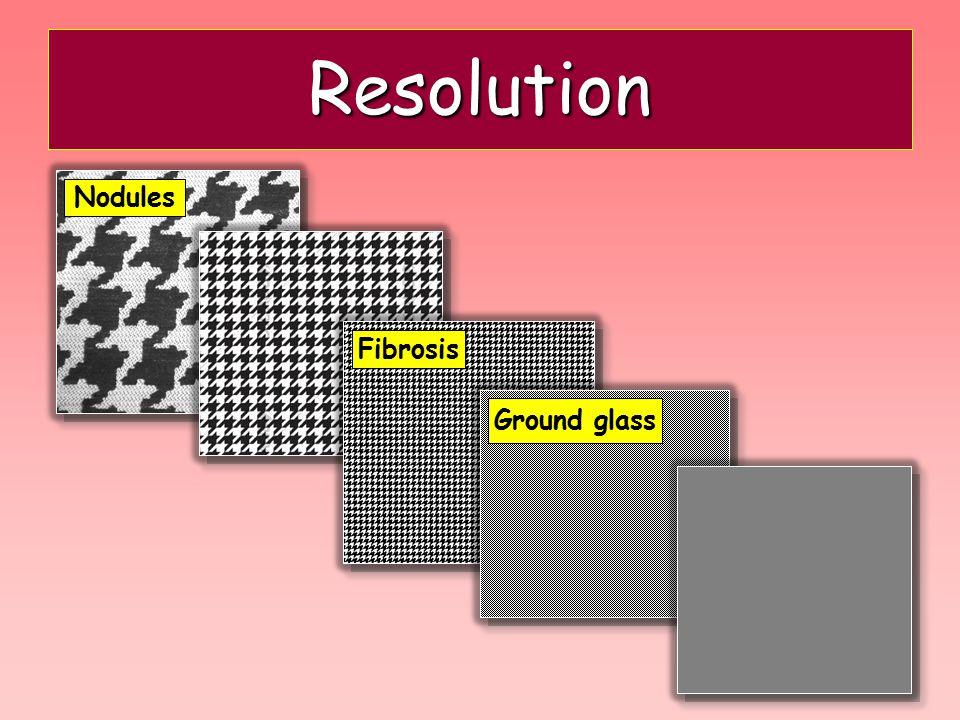 Resolution Nodules Fibrosis Ground glass