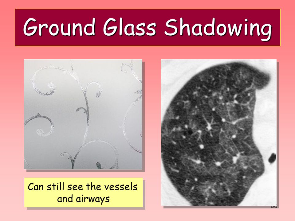 Ground Glass Shadowing