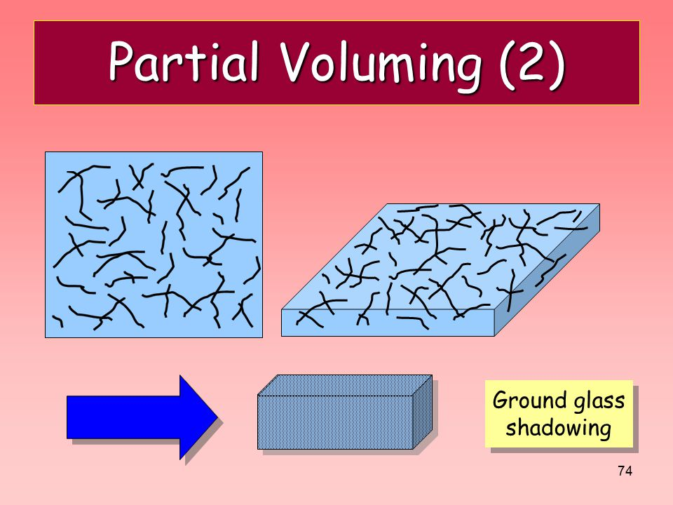 Partial Voluming (2) Ground glass shadowing