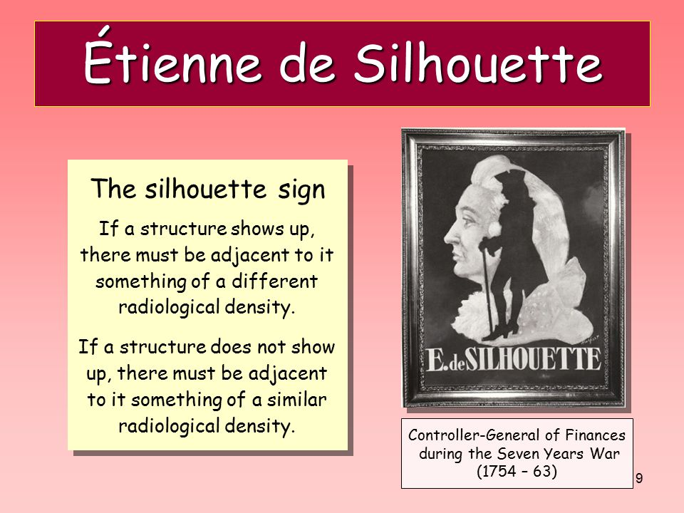 Étienne de Silhouette The silhouette sign If a structure shows up,