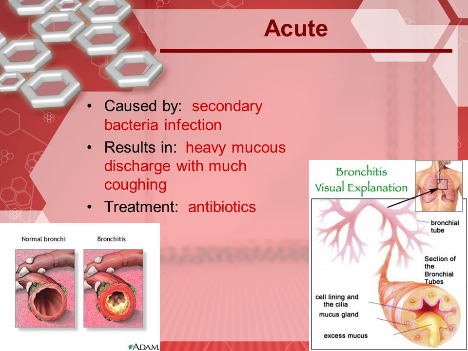 Acute Caused by: secondary bacteria infection