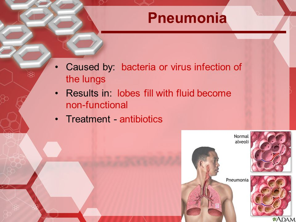 Pneumonia Caused by: bacteria or virus infection of the lungs
