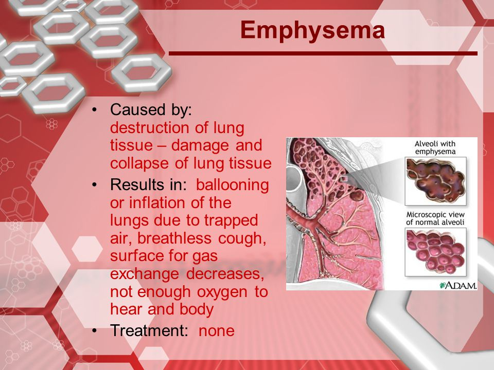 Emphysema Caused by: destruction of lung tissue – damage and collapse of lung tissue.