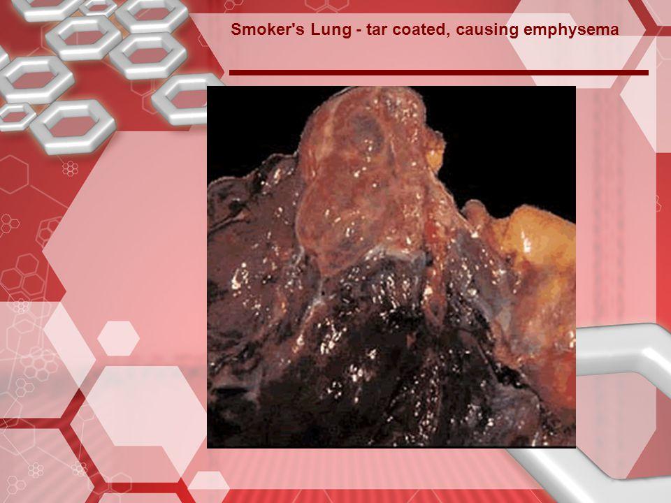 Smoker s Lung - tar coated, causing emphysema