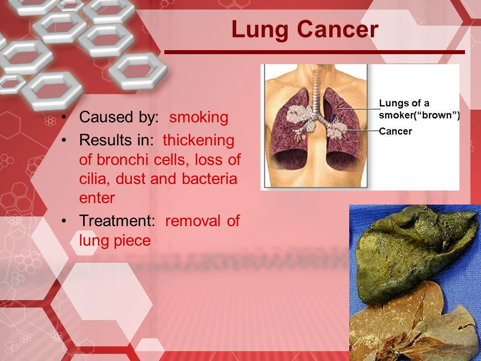 Lung Cancer Caused by: smoking